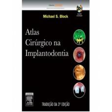 Atlas cirúrgico na implantodontia
